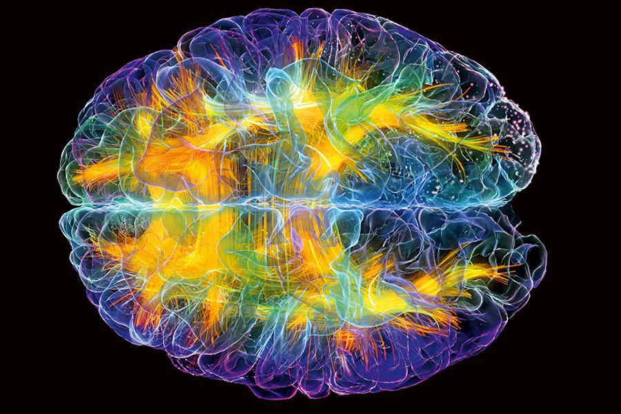 Brain-activity-as-unique-as-fingerprints
