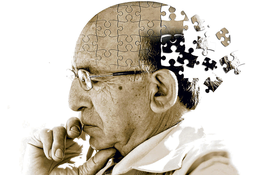 Alzheimer's-neuron-link