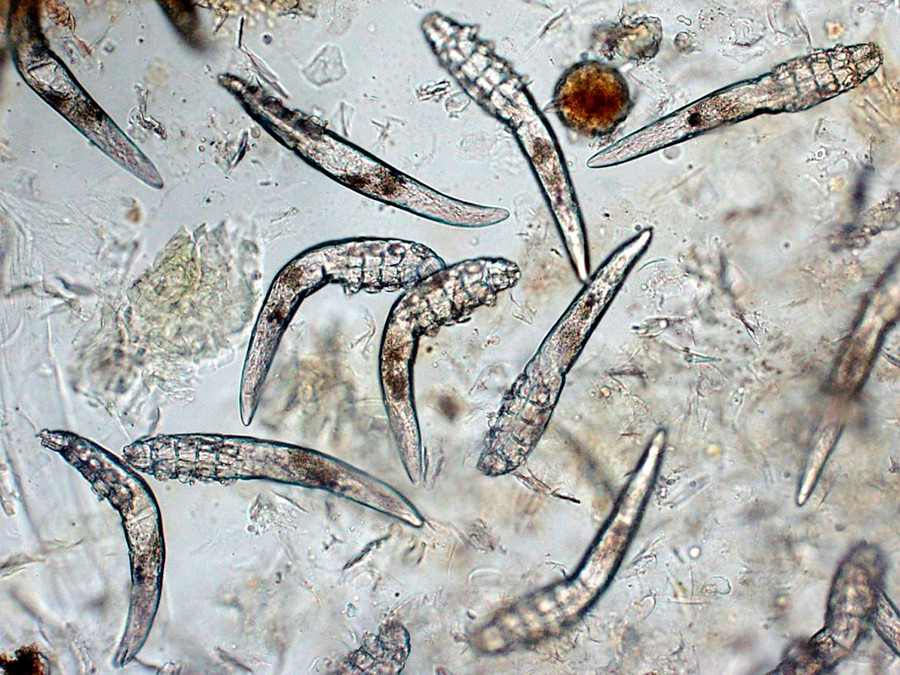 Demodex-folliculorum