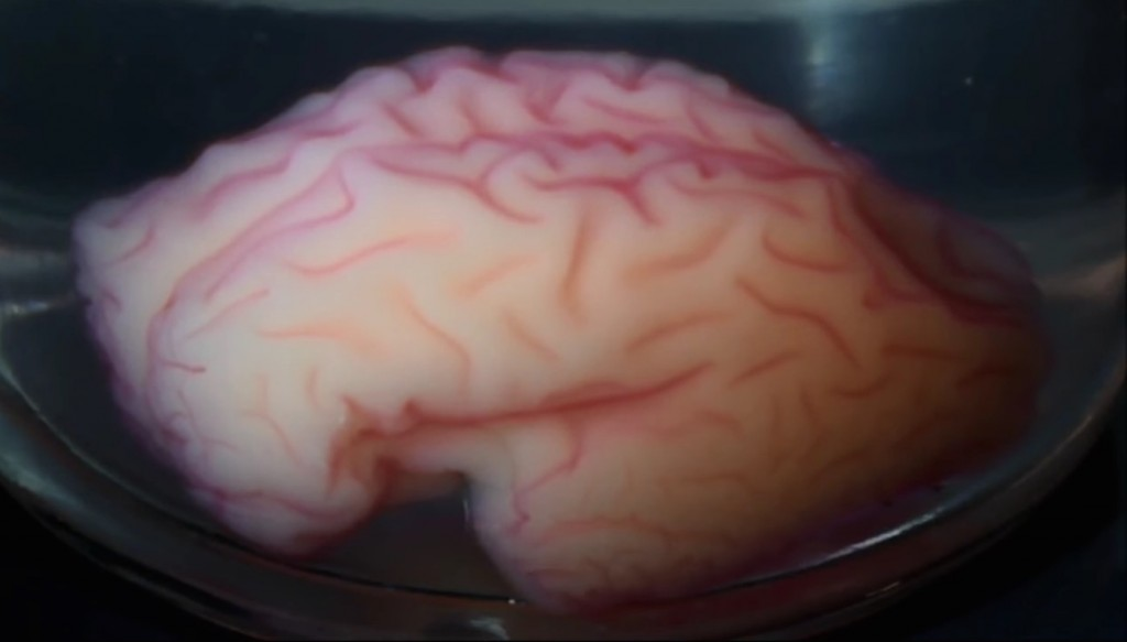 Scientists created a physical model of a human brain and stuck it into a vat of solvent, watching it develop and morph a wrinkly organ. Credit: Live Science/Tuomas Tallinen, Jun Young Chung, and L. Mahadevan