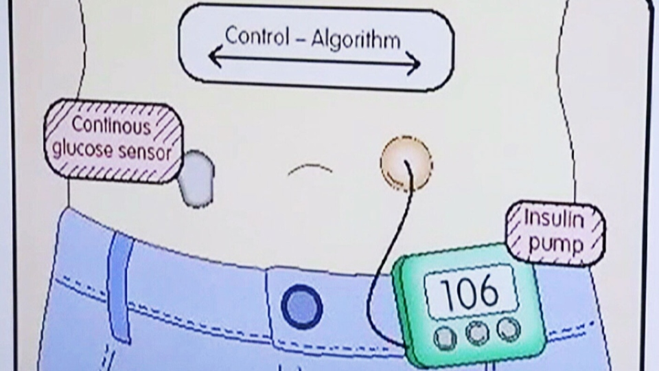 An 'artificial pancreas' that constantly monitors glucose levels to ensure timely delivery of insulin is more effective at managing type 1 diabetes than a traditional insulin pump, according to a Canadian research developed in 2013. Image: CTV News