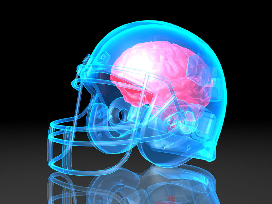 A concussion is basically a traumatic brain injury. Photo credit: Emaze