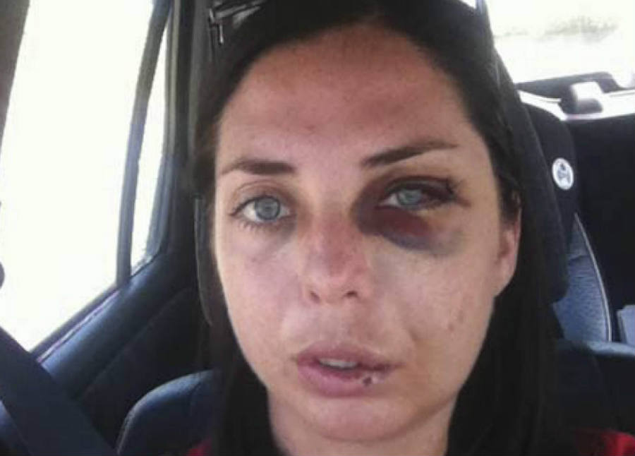 The officer used excessive force, resulting in many broken bones in Ms. Sheehan's face and a black eye