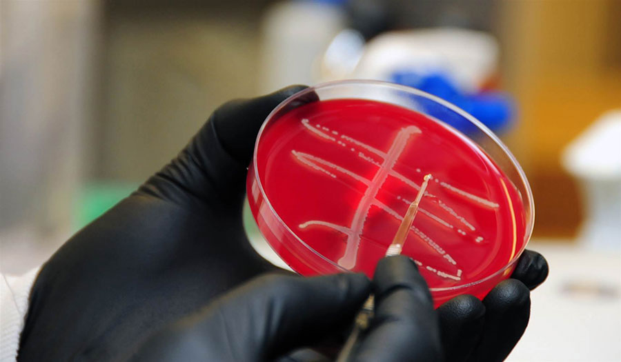 Superbug found for the first time in the U.S.