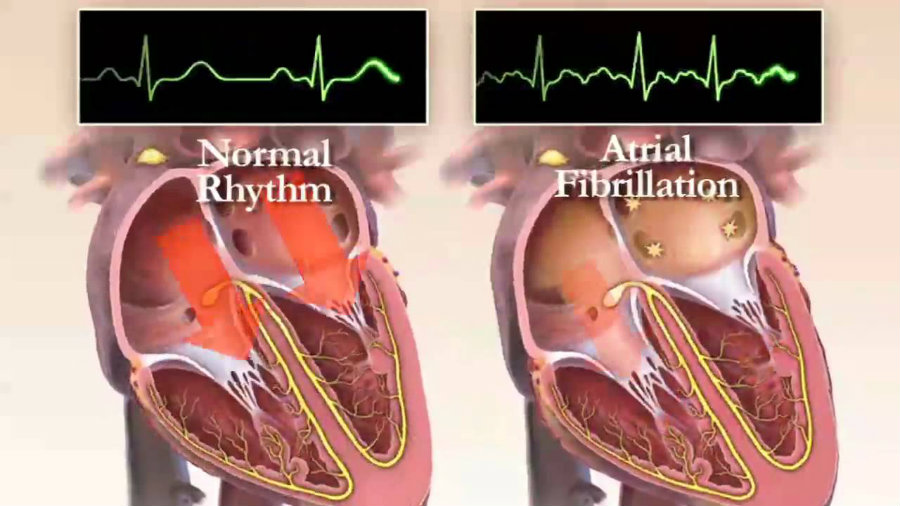 As depicted in the image above, the difference between a healthy heart's beat and a heart of a person with Atrial Fibrillation. Image Credit: YouTube