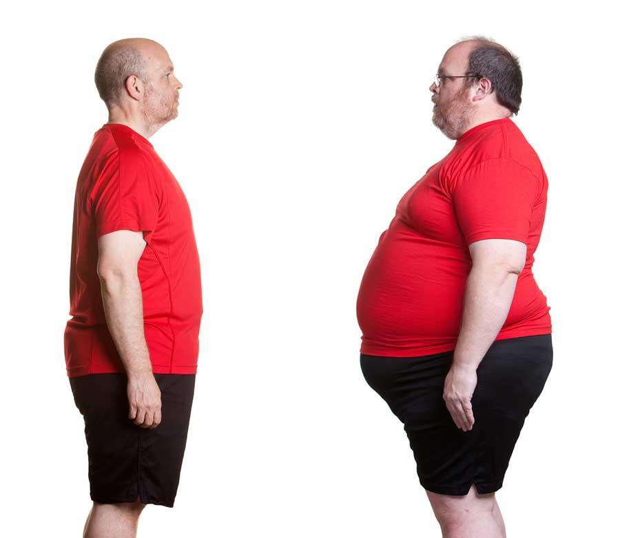 obesity-gene-variation