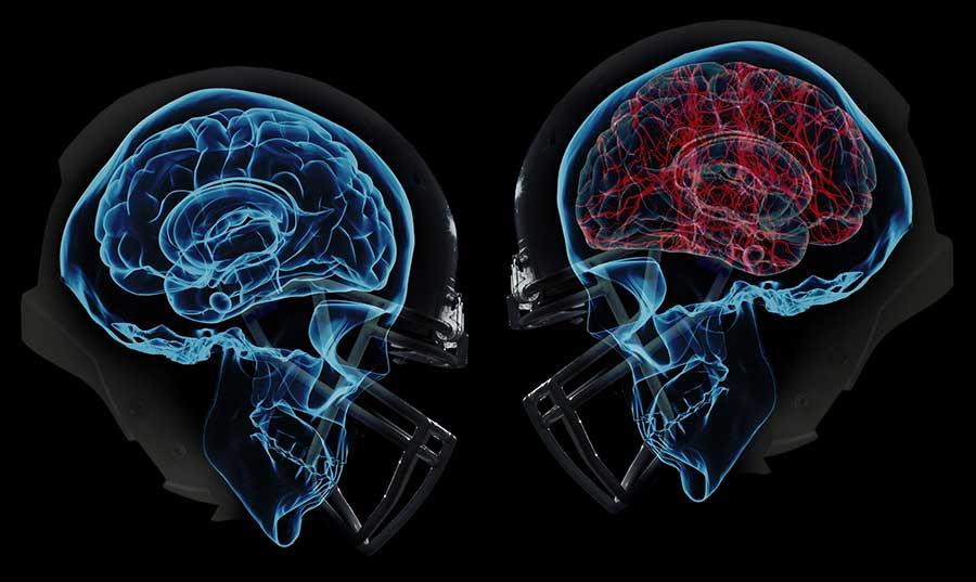 concussion-suicide-risk