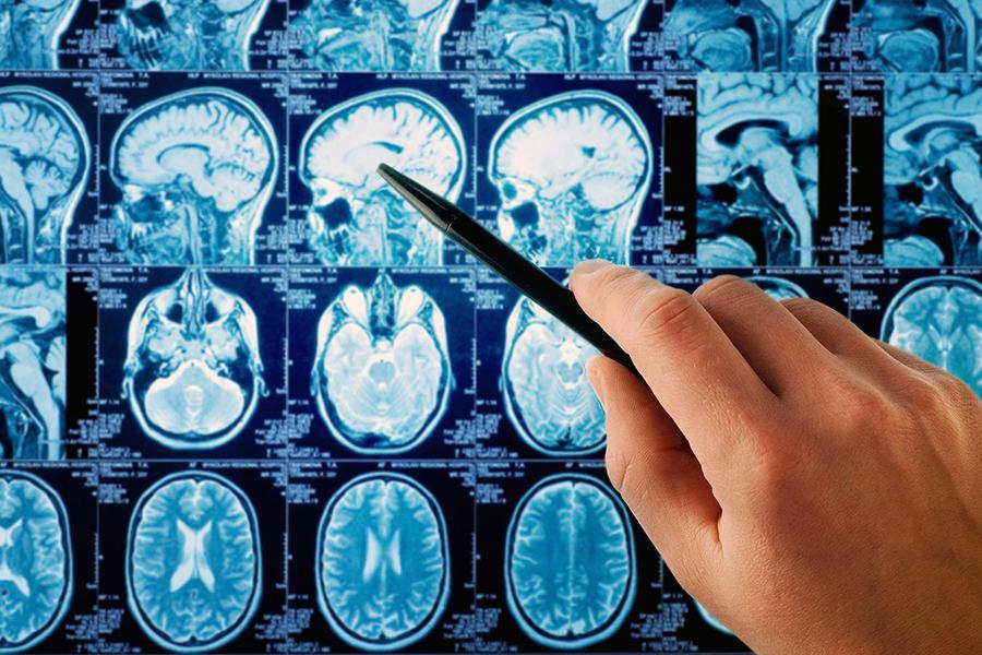 Celldex-Therapeutics-cancer-brain