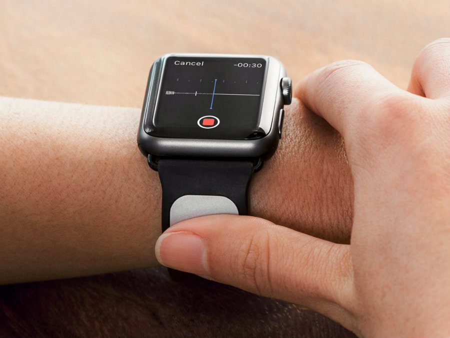 The startup company AliveCor has unveiled its new Kardia Electrocardiogram (ECG) Band for the Apple Watch on Wednesday. Photo credit: Business Insider