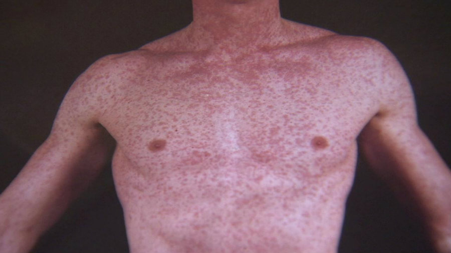 A measles outbreak was reported in California's Nevada county. Photo credit: ABC7