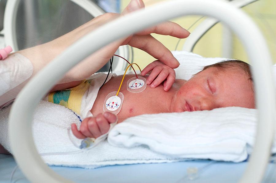 Preterm-Births
