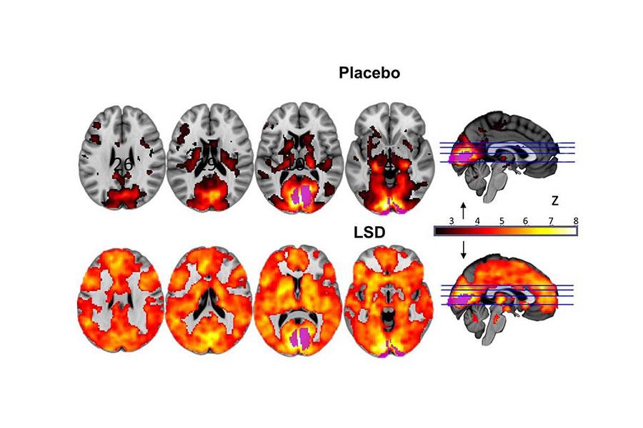 LSD-2
