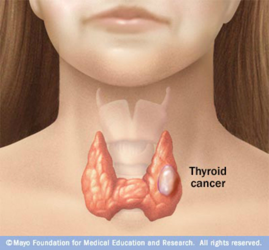 This tumor is not dangerous to the body unless its structure becomes physically damaged. Photo credit: Physiopedia