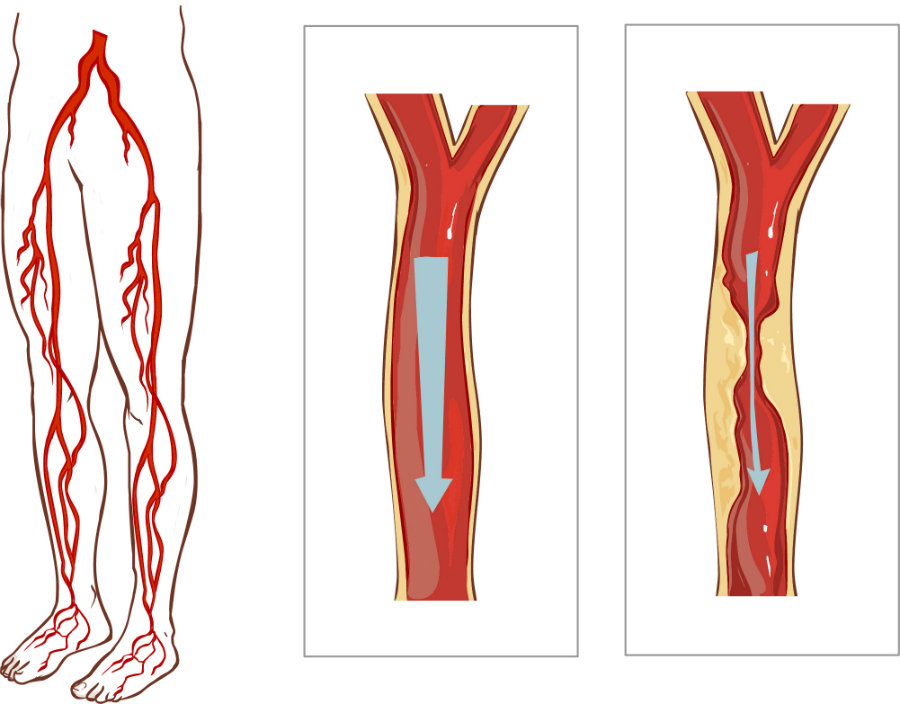 People suffering from narrowed leg arteries have a severe risk of amputation, however, a new study suggested that statins and drugs designed for lowering cholesterol may help reduce this risk. Photo credit: Queensnassaupodiatry.com