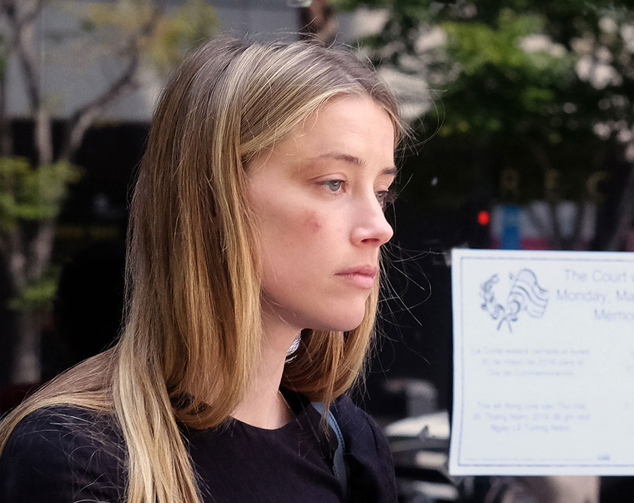 Amber Heard claims domestic violence