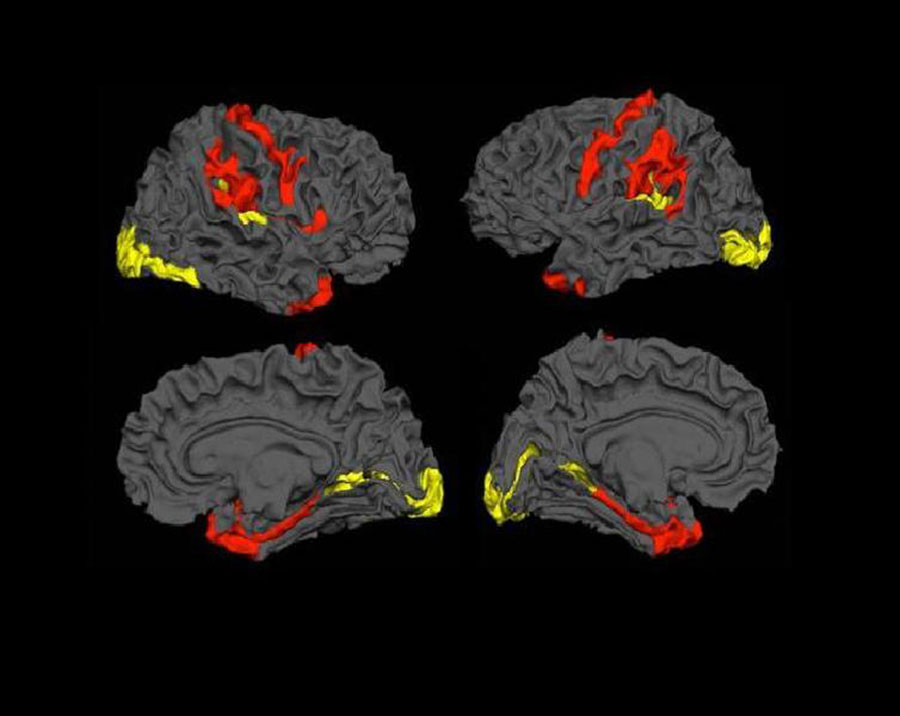 Schizofrenia brain tries to repair itself