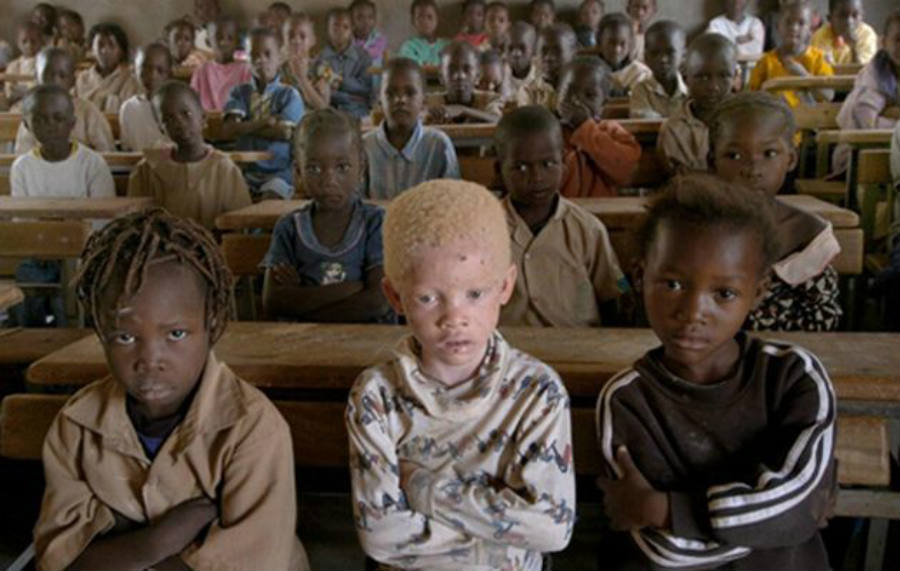 Ancient believes claiming albino people's body is somewhat magical and can bring fortune has cost Malawi's albino population an arm and a leg, literally